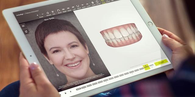 Cómo se ve ClinCheck Pro 6.0 en una tablet