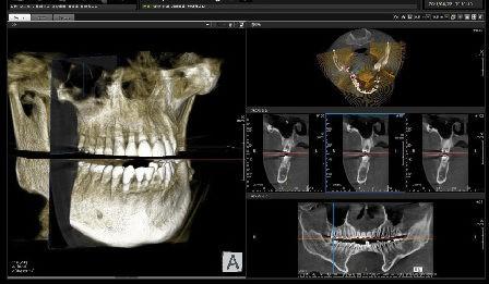 Imagen de la exploración de un TAC dental