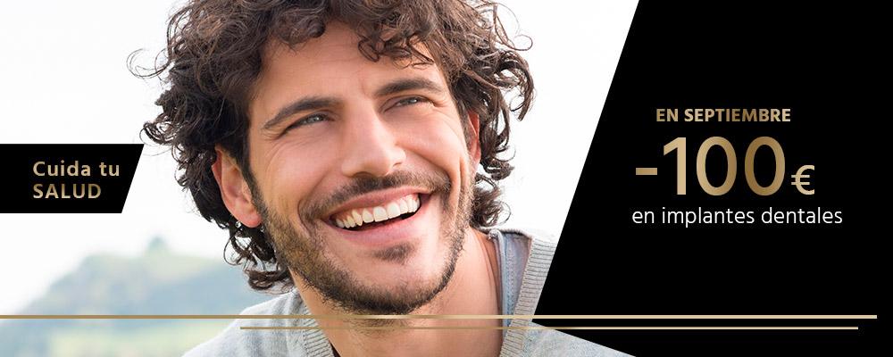 Implantes dentales en Ciudad Real