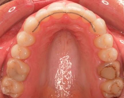 Retención dental fija