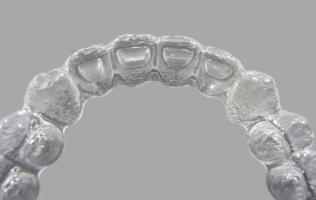 Retenedores dentales Vivera