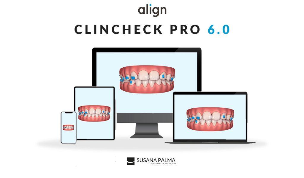 ClinCheck Pro 6.0