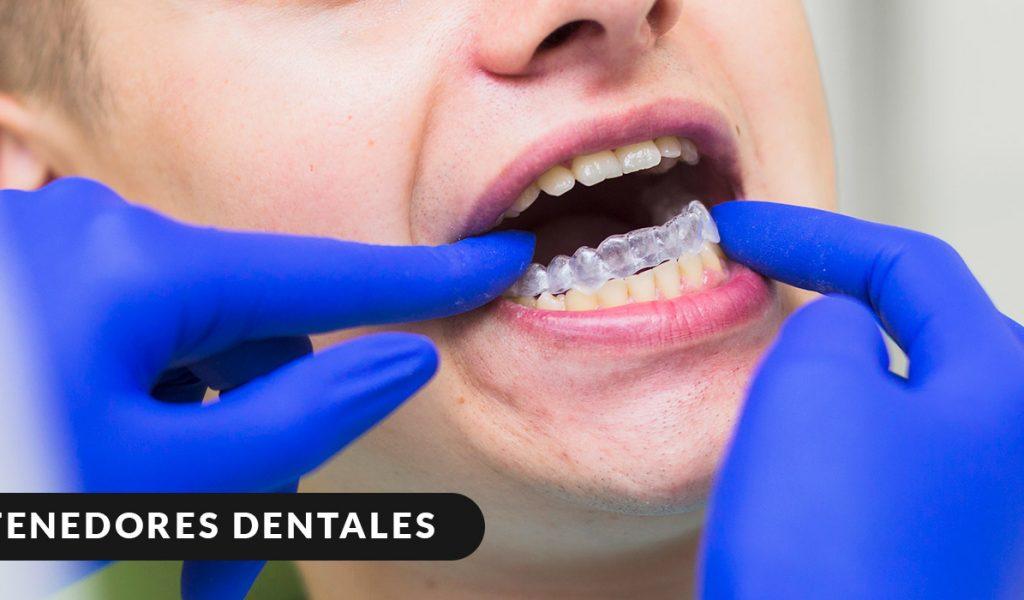 Colocación de retenedor dental